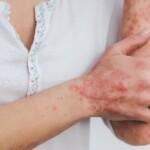 Comment agit le CBG contre le psoriasis ?